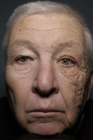 Photo: Face of a longtime driver damaged by sunlight